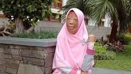 Kisah Inspiratif Dini, Wajah Rusak karena Terbakar Hingga Operasi Face Off