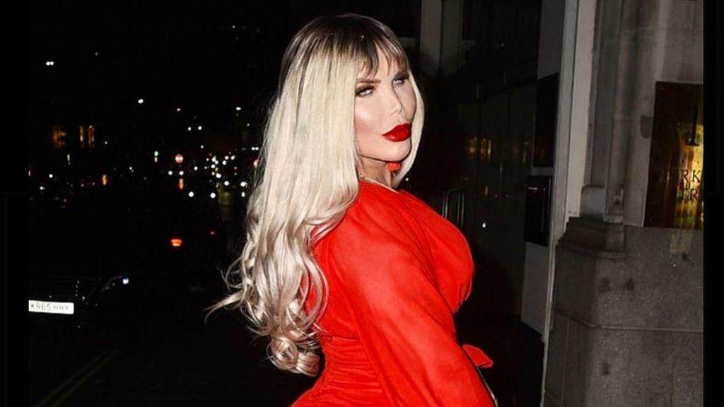 Pria yang Tergila-gila Oplas Kini Jadi Transgender Umumkan Ubah Nama