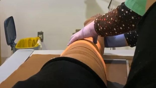 sammy simorangkir jalani operasi kaki