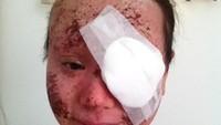 Gunakan Steroid untuk Obati Eczema, Wajah Wanita Ini Berakhir Hancur