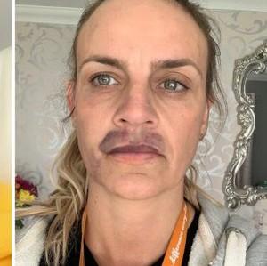 Gagal Filler Bibir di Rumah, Wanita Ini Berakhir Jadi Seperti Punya Kumis