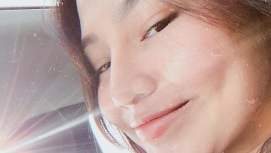 Dara Arafah Dihujat Usai Lakukan Operasi Plastik Hingga Rp 100 Juta