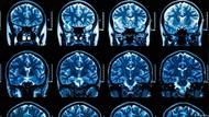 Virus Corona Bisa Memicu Kerusakan Parah pada Otak