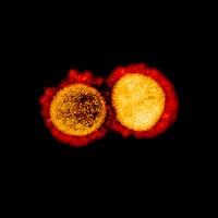 Virus Corona terbaru atau Sars-Cov-2 yang menjadi penyebab COVID-19 memang berbahaya. Tapi tampilannya di bawah mikroskop bisa sangat bertolak belakang.