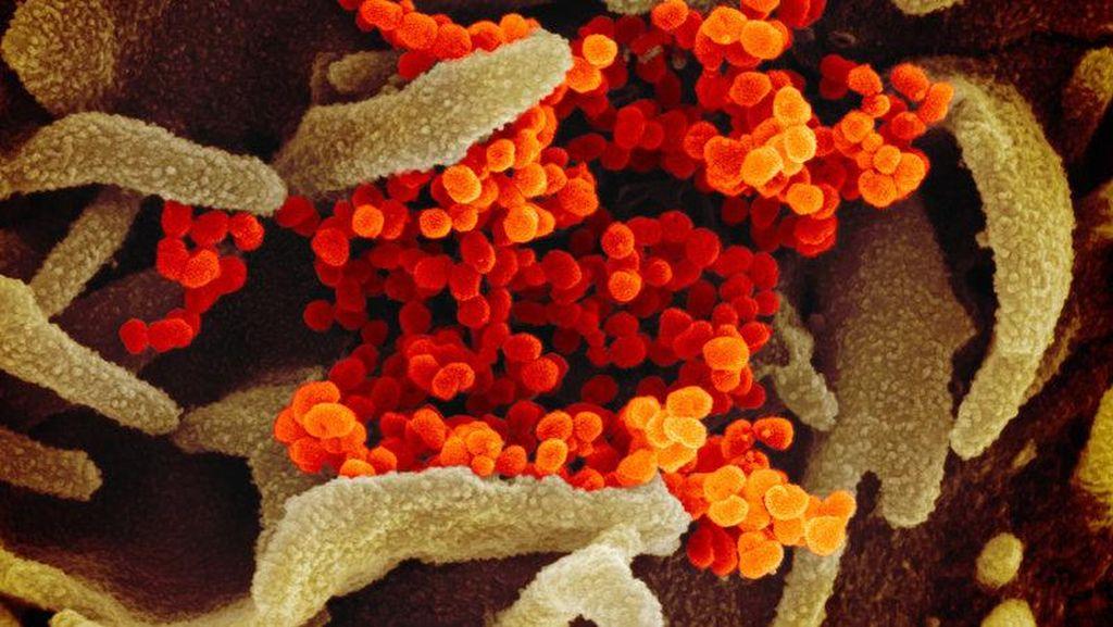 Tampilan Virus Corona di Bawah Mikroskop, Cantik Tapi Bahaya
