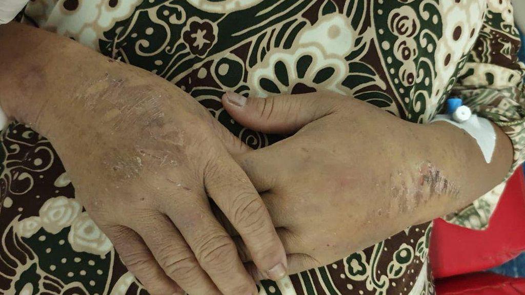 Cerita Keji Penyiksaan TKI di Arab Saudi oleh Majikan Perempuan