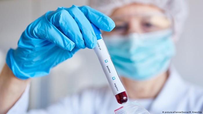 Antibodi dan Kekebalan Corona Bisa Hilang Setelah Pasien Sembuh