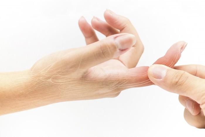 Bersihkan Udang Tangan Terluka
