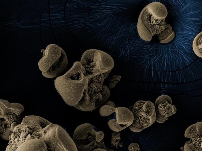bakteri pemakan logam