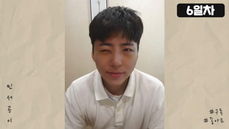 Kim Min Seo Operasi Plastik untuk MIrip Park Bo Gum