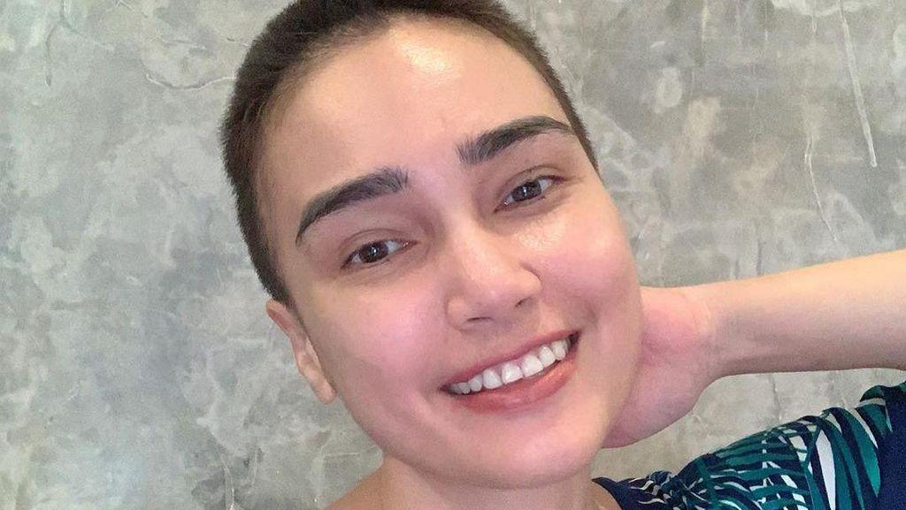 Kisah Feby Febiola Jalani Pengobatan Kista Ovarium Hingga Rambut Jadi Bondol