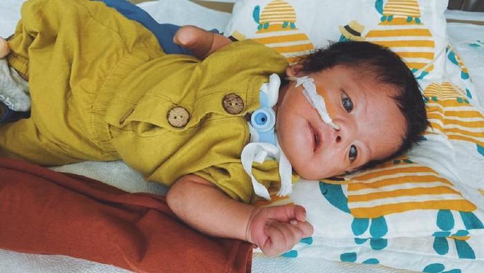 Bayi Hiro idap kondisi langka