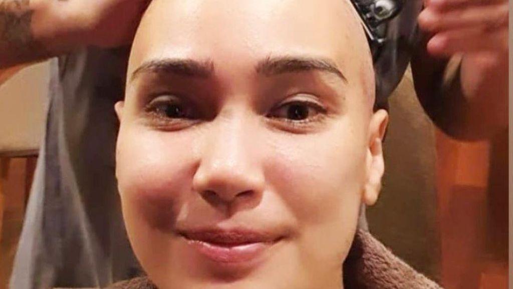 Seperti Feby Febiola, Ini Penyebab Rambut Rontok saat Kemoterapi