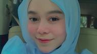Lesti Kejora Makin Cantik, Perawatannya Dari Botox Sampai Tanam Benang