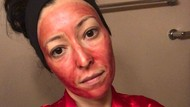 Potret Wanita Gunakan Darah Menstruasi Sebagai Masker, Ngaku Bikin Glowing