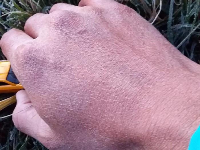 kondisi kulit akibat embun es di dieng