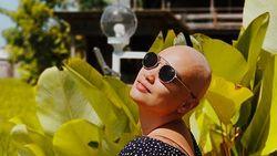 Feby Febiola Jalani Kemoterapi Terakhir Hari Ini