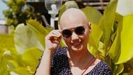 Bukan Pura-pura, Feby Febiola Tetap Bahagia Meski Divonis Kanker