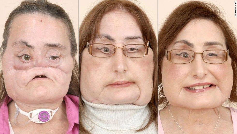 Connie Culp, pasien transplantasi wajah pertama di Amerika Serikat meninggal dunia.