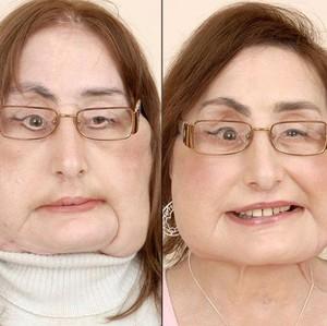 9 Tahun Bertahan Hidup, Pasien Transplantasi Wajah Pertama AS Meninggal