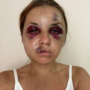 Cerita Pilu Presenter Cantik, Hampir Diperkosa & Dipukuli Sampai Babak Belur