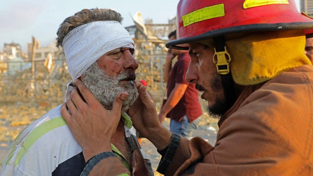Video Ledakan di Lebanon, Saksi Mengaku Tuli Sesaat