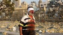 Ledakan Besar Beirut Lebanon Terjadi 2 Kali, Puluhan Orang Terluka