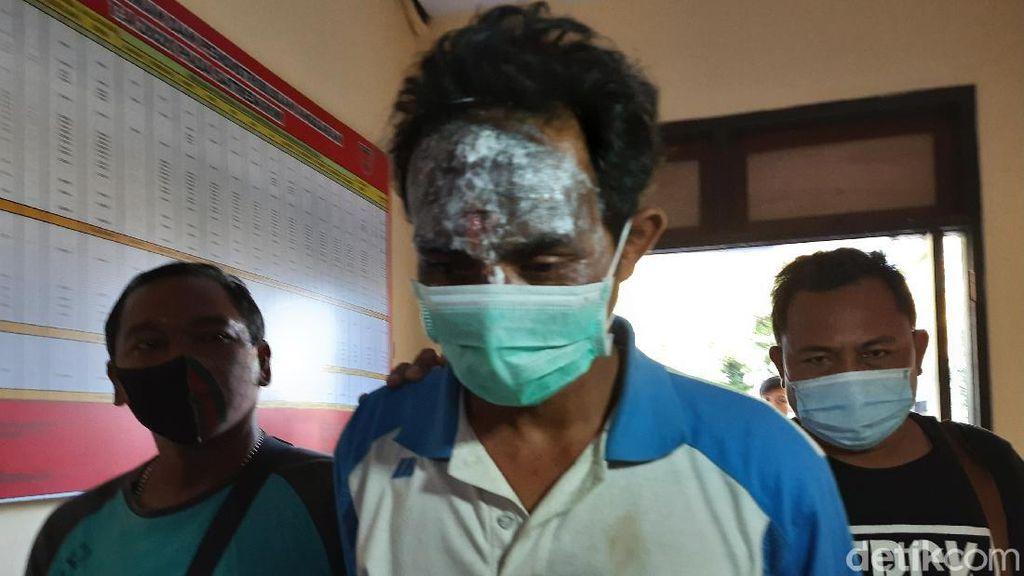 Aksi Dukun Cabul Masukkan Telur ke Kemaluan Lukai Wajah Sendiri Sebelum Ditangkap