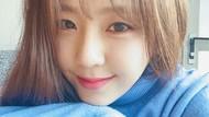 7 Fakta Kim Yewon Aktris Drakor yang Sering Tertukar dengan Kim Ye-won