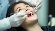 Nggak Cuma Bisa Bersihkan Karang Gigi, Ini Manfaat Lain dari Scaling