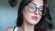 Kisah Mahasiswi yang Mengalami Kondisi Langka, Menopause di Usia 15 Tahun