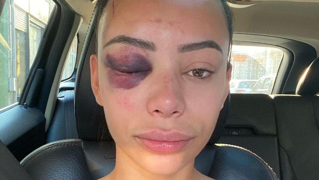 Wajah Cantik Bintang Reality Show Babak Belur Setelah Dipukuli di Pesta