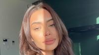Foto: Penampakan Wajah Babak Belur Bintang Reality Show Cantik yang Dianiaya