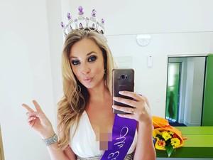 Most Popular Sepekan: Mantan Miss USA yang Sadis, Patahkan Hidung Kekasih