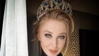 Wajah Manis Mantan Miss USA yang Ternyata Sadis, Patahkan Hidung Kekasih