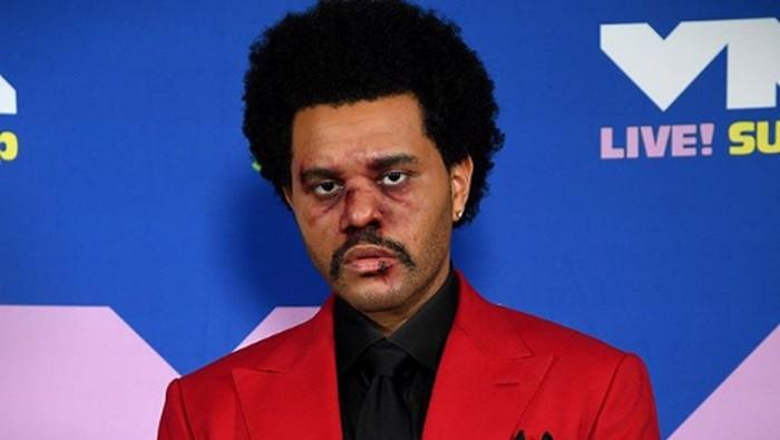 The Weeknd tampil dengan wajah lebam di MTV VMA 2020.