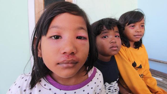 Warga menunjukkan kantong plastik berisi Semut Semai atau serangga Tomcat (Paederus littoralis) di desa Pabean udik, Indramayu, Jawa Barat, Selasa (1/9/2020). Puluhan warga di desa tersebut mengalami luka melepuh mirip luka bakar, merah dan gatal akibat serangan serangga tomcat yang masuk ke pemukiman warga. ANTARA FOTO/Dedhez Anggara/foc.