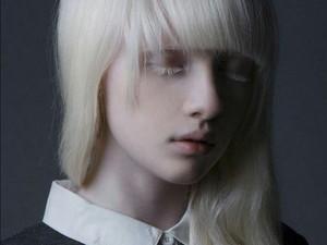 Berkulit Albino, 6 Wanita Ini Buktikan Mereka Bisa Sukses Jadi Model