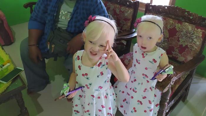 Dua bocah kembar albino bersama seorang warga di Wonogiri, Selasa (1/9/2020).