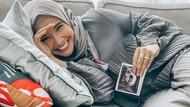 Zaskia Sungkar Mual-mual di Kehamilan Pertama