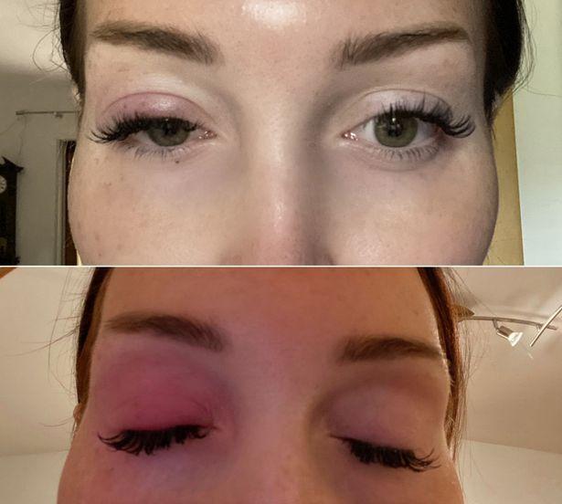 Mata bengkak Conny Hawk setelah melakukan extension bulu mata