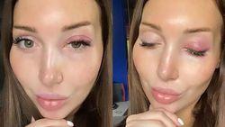 Extension Bulu Mata Gagal, Mata Model Ini Bengkak Hingga Harus Berobat ke RS