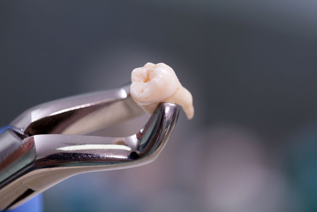 Kondom hingga Kulit Manusia Pernah Ditemukan Dalam Fast Food