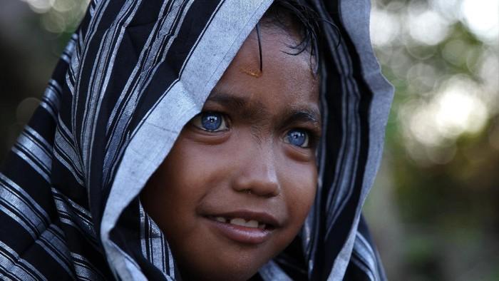 Seorang anak dari Suku Buton, Fardan memiliki mata berwarna biru di Kendari, Sulawesi Tenggara, Selasa (15/9/2020). Fardan merupakan salah satu dari belasan orang Suku Buton di Sulawesi Tenggara yang memiliki  Sindrom Waardenburg yaitu kelainan genetik langka yang menyebabkan mata berwarna biru. ANTARA FOTO/Jojon/pras.