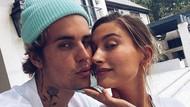Begini Cara Hailey Baldwin Bantu Justin Bieber Atasi Jerawat Dewasa
