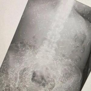 Foto X-Ray Wanita Pakai Ratusan Susuk Viral, Ini Cerita di Baliknya