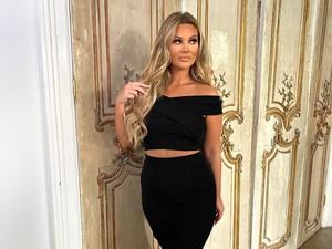 Punya Penyakit Kronis, Bintang Reality Show Ini Sedot Lemak di Kaki