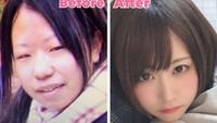 Posting Foto Before After Oplas, Wanita Ini Bikin Netizen Tidak Percaya