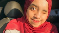 Kisah Viral Hijabers Medan Alami Skoliosis: Mata dan Wajah Aku Tak Simetris