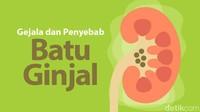 Perlu Tahu! Gejala dan Penyebab Penyakit Batu Ginjal